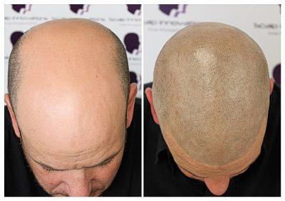scalp-micropigmentation-06193-400x282 Gallery -The Scalp  & Micro-pigmentation Experts Swindon