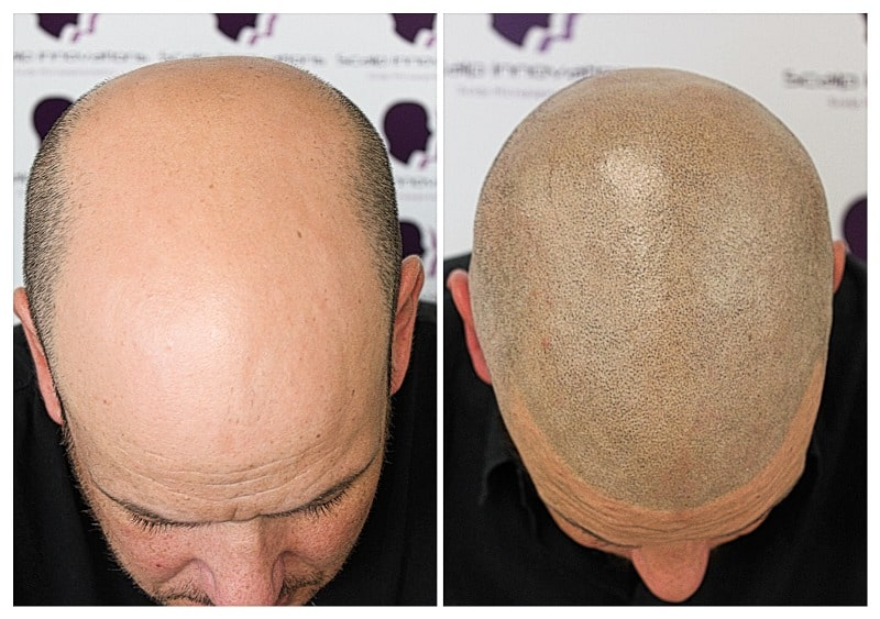 scalp-micropigmentation-06193 Gallery -The Scalp  & Micro-pigmentation Experts Swindon
