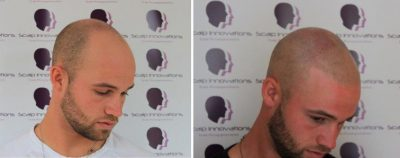 scalp-micropigmentation-1-400x158 Gallery -The Scalp  & Micro-pigmentation Experts Swindon