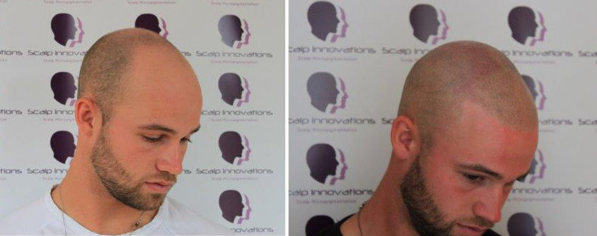 scalp-micropigmentation-1 Gallery -The Scalp  & Micro-pigmentation Experts Swindon