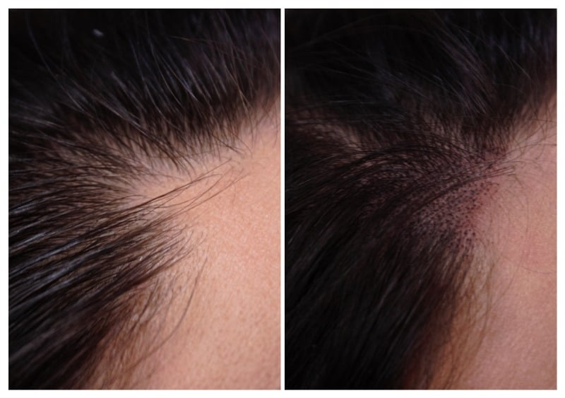scalp-micropigmentation-Amber2 Gallery -The Scalp  & Micro-pigmentation Experts Swindon