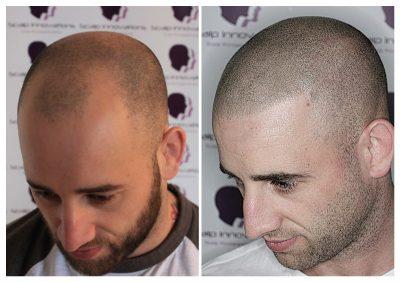 scalp-micropigmentation-David18-400x282 Gallery -The Scalp  & Micro-pigmentation Experts Swindon