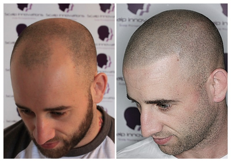 scalp-micropigmentation-David18 Home -The Scalp  & Micro-pigmentation Experts Swindon