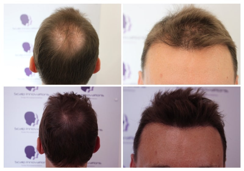 scalp-micropigmentation-Density Gallery -The Scalp  & Micro-pigmentation Experts Swindon