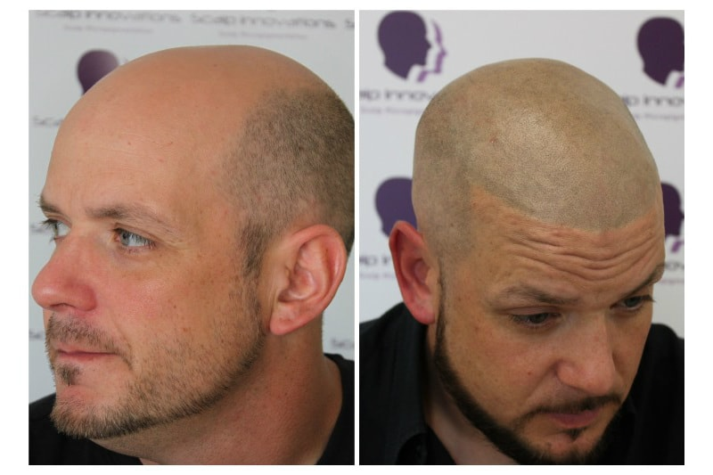 scalp-micropigmentation-Scalp2019-10 Gallery -The Scalp  & Micro-pigmentation Experts Swindon