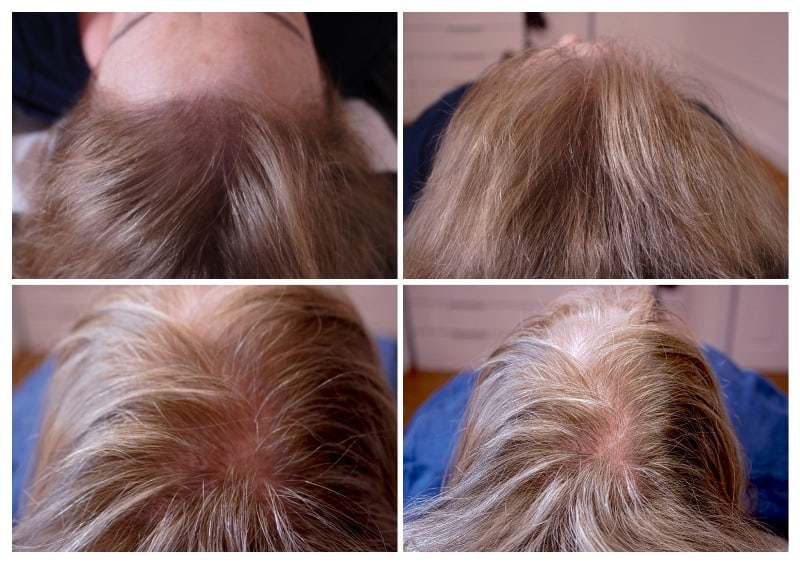 scalp-micropigmentation-bim3 Gallery -The Scalp  & Micro-pigmentation Experts Swindon