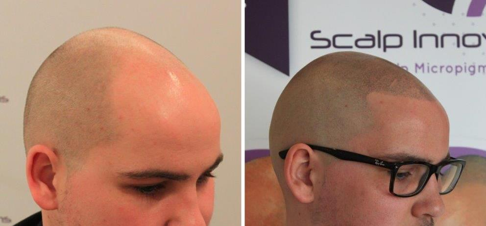 scalp-micropigmentation-hair-loss Gallery -The Scalp  & Micro-pigmentation Experts Swindon