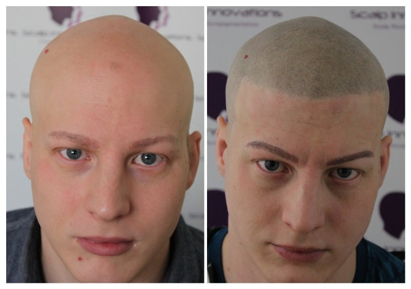 scalp-micropigmentation-luke20191 Gallery -The Scalp  & Micro-pigmentation Experts Swindon