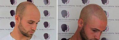 scalp-micropigmentation-wide-400x137 Gallery -The Scalp  & Micro-pigmentation Experts Swindon
