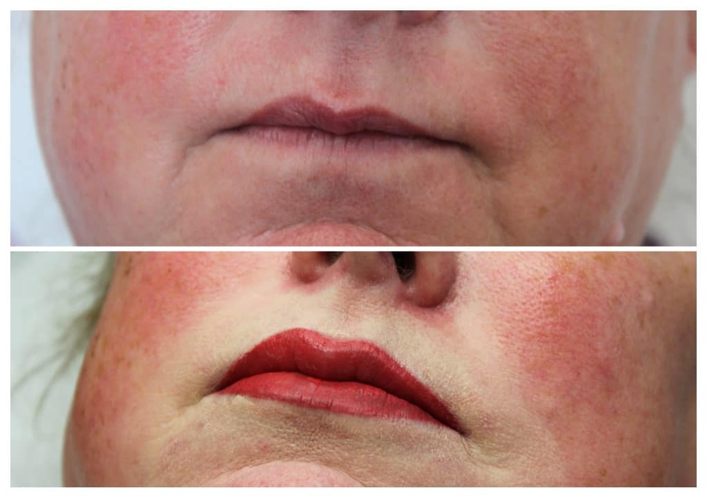 semi-permanent-makeup-lips-2019-8 Gallery for Semi-Permanent Make-up -The Scalp  & Micro-pigmentation Experts Swindon