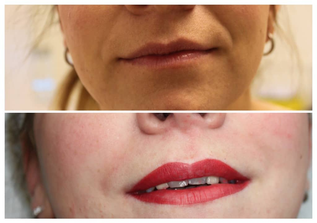semi-permanent-makeup-lips-2019-9 Gallery for Semi-Permanent Make-up -The Scalp  & Micro-pigmentation Experts Swindon
