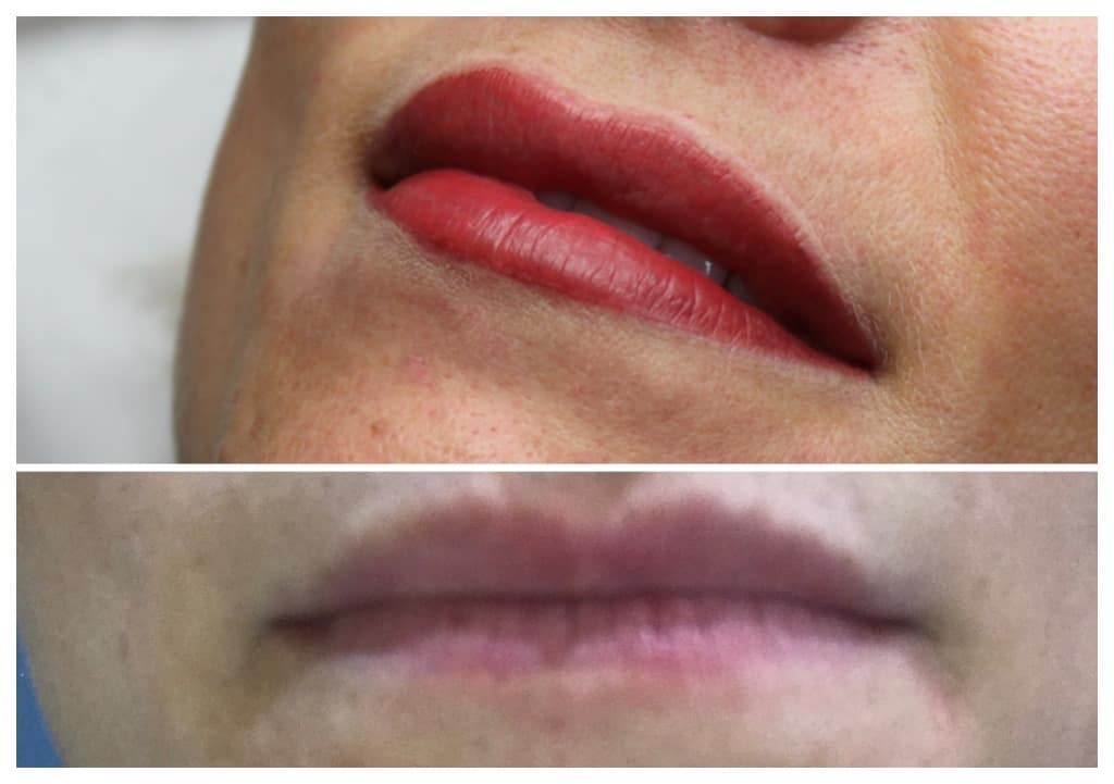semi-permanent-makeup-lips-_collage1mpuk Gallery for Semi-Permanent Make-up -The Scalp  & Micro-pigmentation Experts Swindon