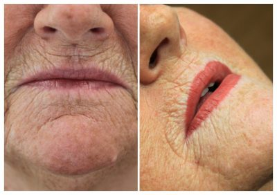 semi-permanent-makeup-lips-dorothy-400x282 Gallery for Semi-Permanent Make-up -The Scalp  & Micro-pigmentation Experts Swindon