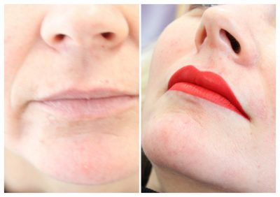 semi-permanent-makeup-lips-red-400x282 Gallery for Semi-Permanent Make-up -The Scalp  & Micro-pigmentation Experts Swindon