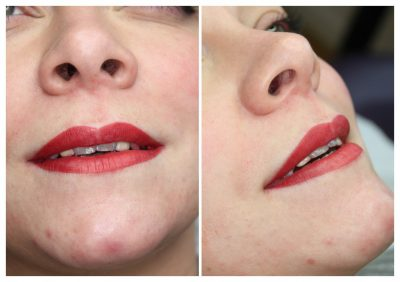 semi-permanent-makeup-lips-todays-400x282 Gallery for Semi-Permanent Make-up -The Scalp  & Micro-pigmentation Experts Swindon