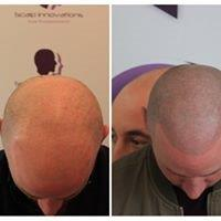 trico-1 Gallery -The Scalp  & Micro-pigmentation Experts Swindon