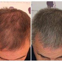 trico-2 Aftercare -The Scalp  & Micro-pigmentation Experts Swindon